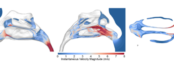 Do you smell what I smell? How nasal geometry affects airflow dynamics