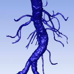 How to Shrink Wrap a biomedical STL file in Fluent Meshing